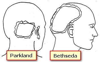 PARKLAND VS BETHESDA JFK EXIT WOUND